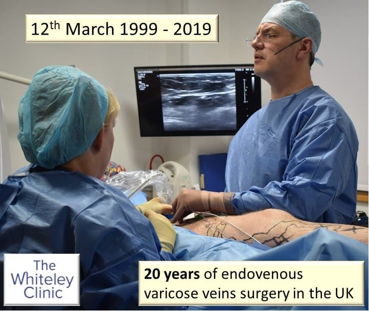 20 Years of Endovenous Varicose Veins Treatment