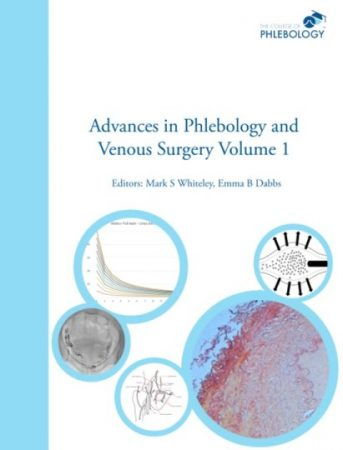 Advances in Phlebology and Venous Surgery Volume 1 - Paperback - Editors Whiteley Dabbs ISBN 978-1908586032