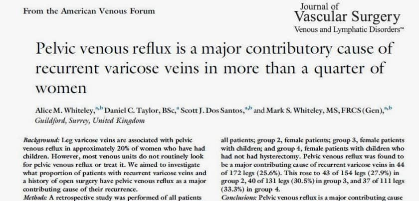 Recurrent Varicose Veins due to Missed Pelvic Varicose Veins in more than 1 in 4 Women - Research from The Whiteley Clinic