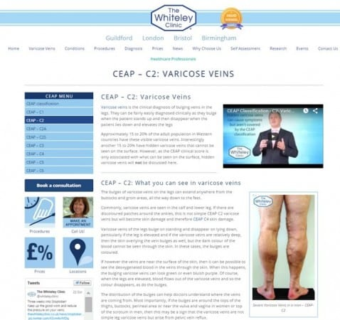 Assess your own leg veins varicose veins and spider veins on The Whiteley Clinic self assessement pages