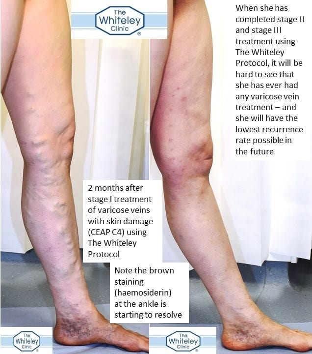 Before and after varicose veins with brown stains skin damage - haemosiderin - CEAP C4