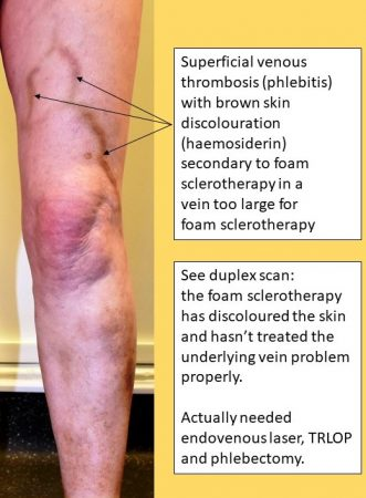 Beware cheap varicose veins treatment - foam sclerotherapy giving inadequate treatment