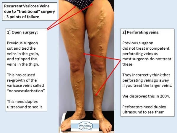 Bilateral recurrent varicose veins - 3 missed sources of varicose veins - came to The Whiteley Clinic for help - 1 and 2