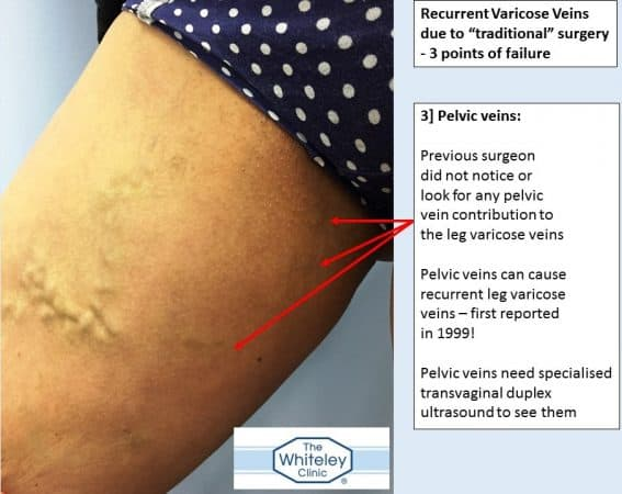 Bilateral recurrent varicose veins - 3 missed sources of varicose veins - came to The Whiteley Clinic for help - 3