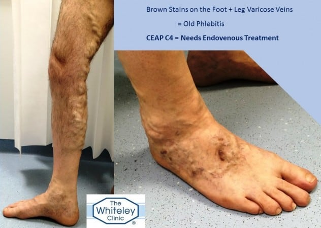 Brown Stains on Feet from Superficial Thrombophlebitis - Phlebitis - CEAP C4 - Diagnosed and Cured at The Whiteley Clinic