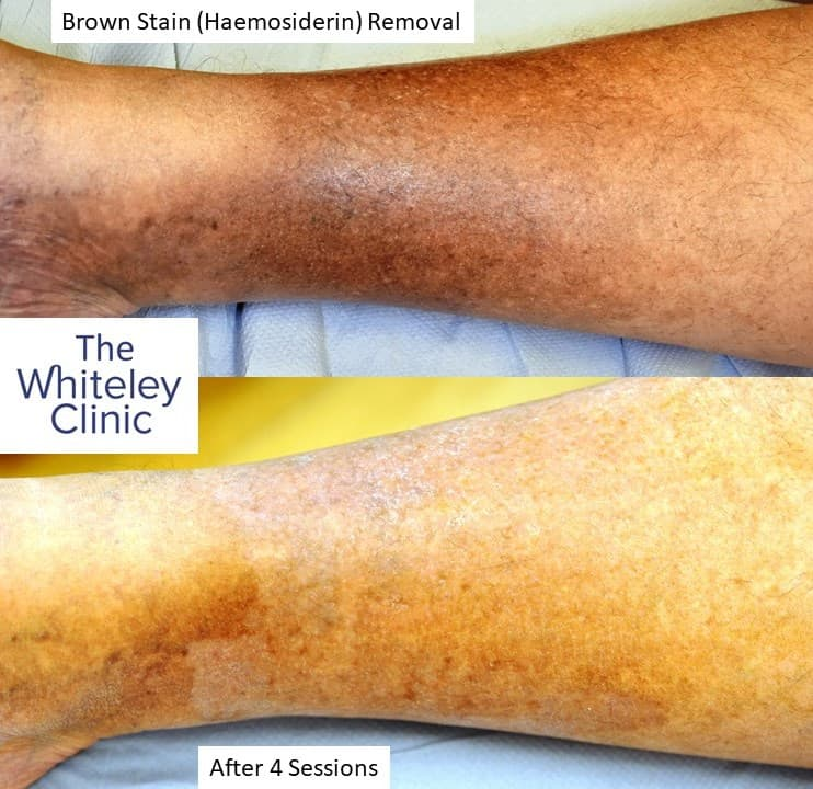 Brown marks removal from legs – Haemosiderin