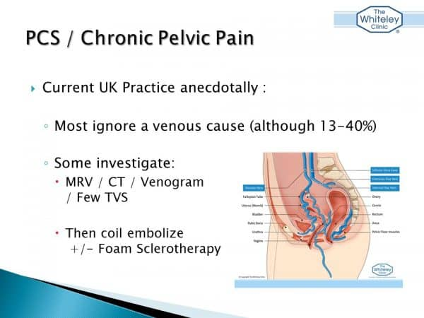 Chronic pelvic pain and pelvic congestion syndrome talk by Mark Whiteley - American Venous Forum Feb 2017