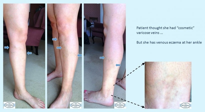 Cosemtic varicose veins actually causing venous eczema - varicose eczema - diagnosed at The Whiteley Clinic