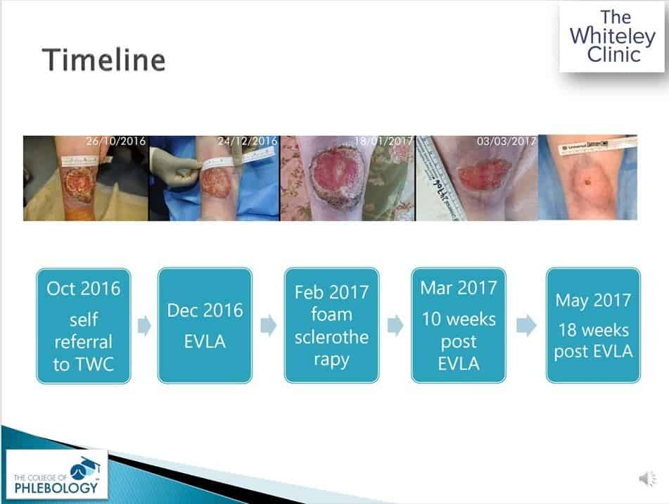 Curing Venous Leg Ulcers – Slide from lecture by Mark Whiteley online Wed 9 September 2020