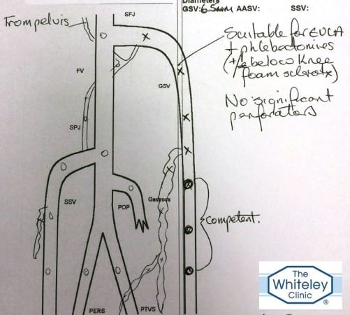 Duplex Ultrasound Report right varicose veins