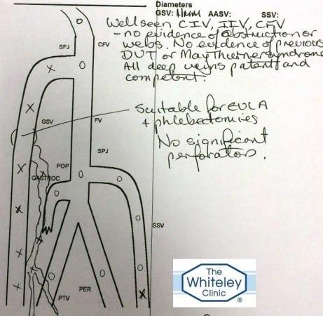Duplex Ultrasound Report showing hidden varicose veins venous reflux misdiagnosed as lymphoedema