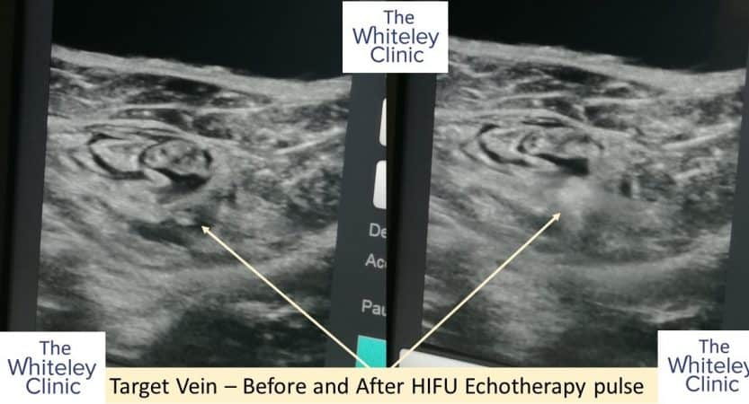 Echotherapy Sonovein treatment of varicose veins at The Whiteley Clinic – before and after