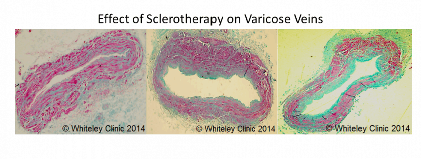 Effect of Sclerotherapy on Varicose Veins - original research from The Whiteley Clinic