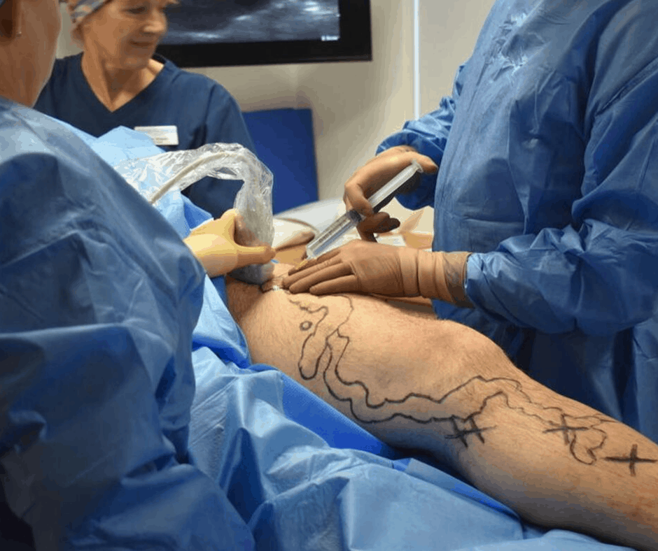 Endovenous microwave ablation (EMWA) course to treat for varicose veins and perforating veins at The Whiteley Clinic