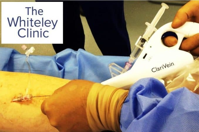 First Clarivein MOCA case at The Whiteley Clinic Bond Street London 29th Sept 2014