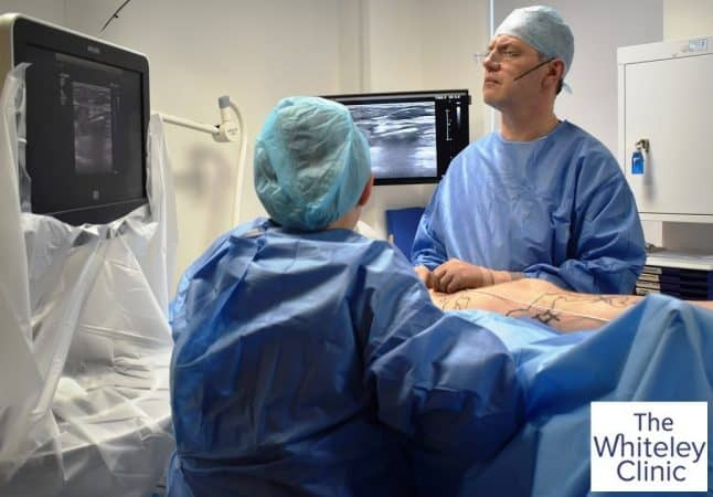 First microwave varicose veins treatment in UK on Richard Sutton by Mark Whiteley and Judy Holdstock – 15 February 2019