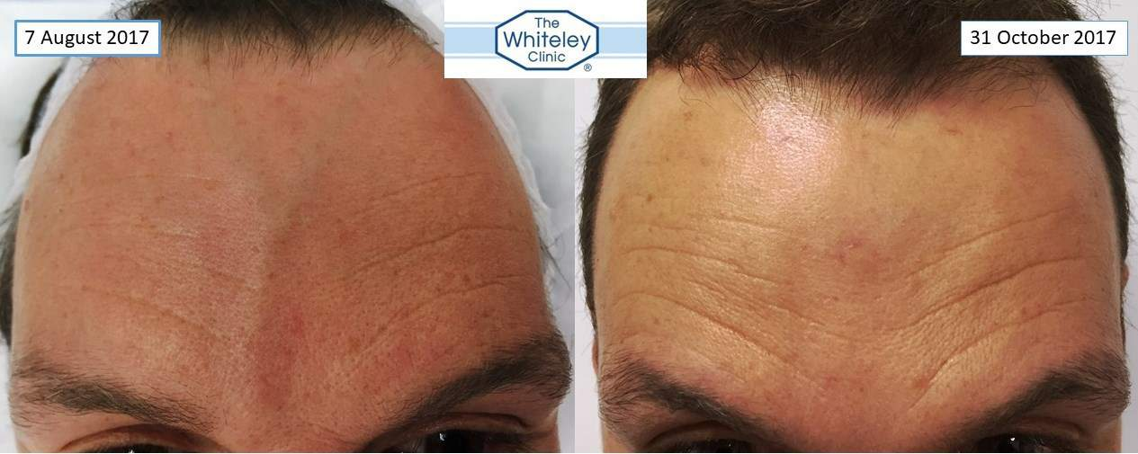 Forehead vein removal - facial veins removed at The Whiteley Clinic