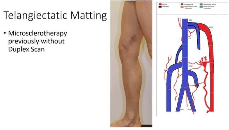 GSV reflux – hidden varicose veins – causing thread veins and telangiectatic matting – why duplex is essential before thread vein treatment