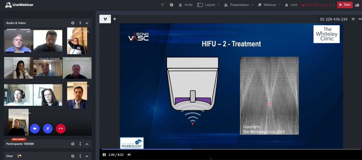 HIFU treatment of varicose veins – presented at Technovasc 2020 by Mark Whiteley