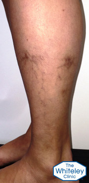 Haemosiderin brown staining on outside of left leg due to varicose veins from pelvis veins crop