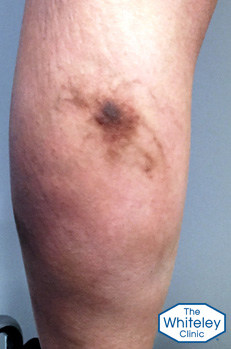 Haemosiderin brown staning due to old phlebitis from varicose veins arising from pelvis crop