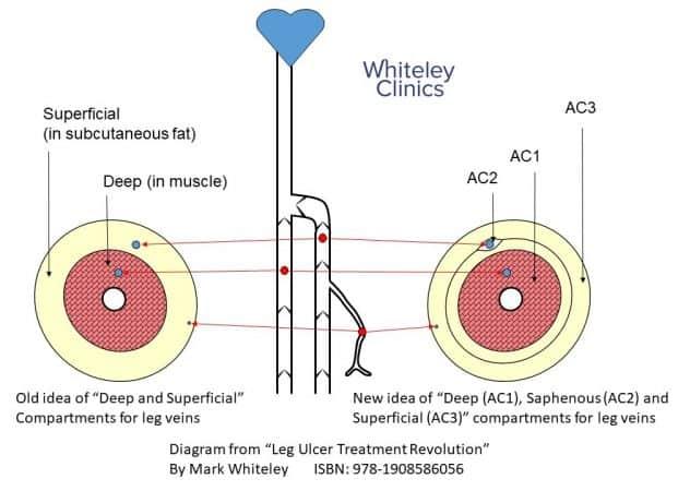 hidden varicose veins superficial vein reflux \u2013 the whiteley clinic