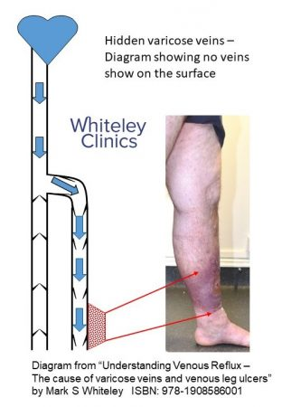 Hidden varicose veins - diagram showing why there are no visible varicose veins on surface on standing in patient with venous skin damage- The Whiteley Clinic