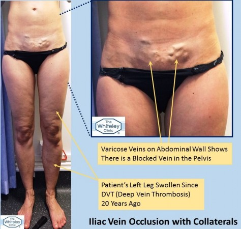 Pelvic vein blockage - Iliac vein occlusion - causing a swollen leg and abdominal collateral varicose veins - The Whiteley Clinic