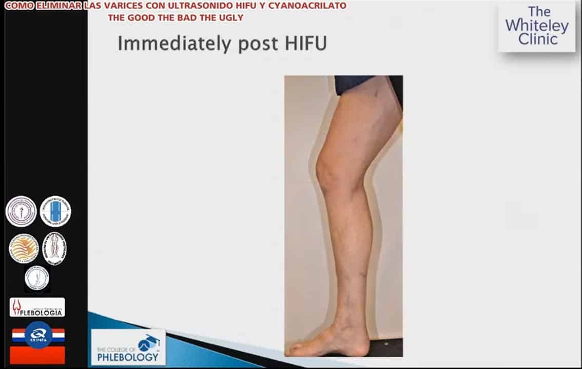 Immediately after varicose veins surgery using HIFU Treatment of Varicose Veins – Webinar 13 August 2020