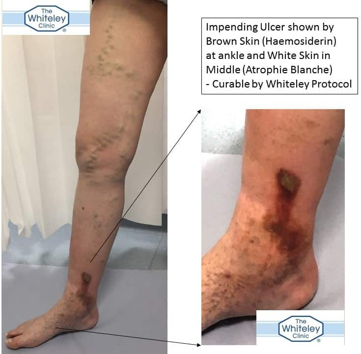 Impending leg ulcer secondary to recurrent varicose veins and perforators