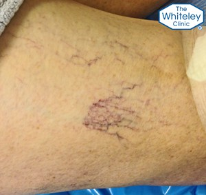Large thread veins on thigh - Telangectasia spider veins CEAP-C1