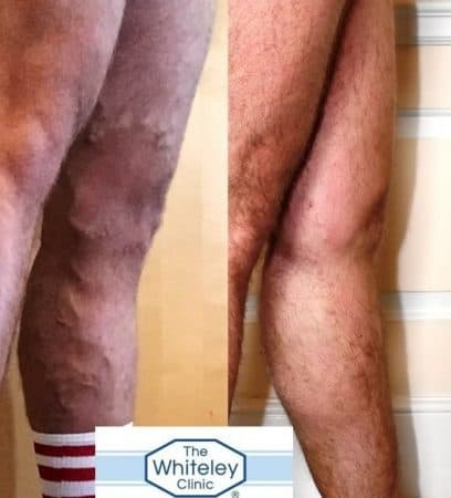 Large varicose veins of left leg in Daniel Foster before and after treatment at The Whiteley Clinic Bristol