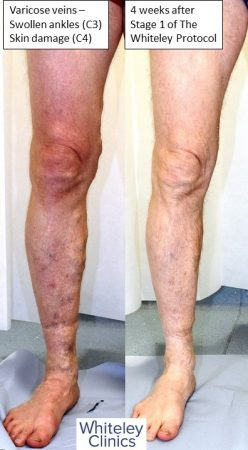 Large varicose veins swollen ankles and haemosiderin skin damage cured by The Whiteley Protocol local anaesthetic endovenous surgery - anterior leg