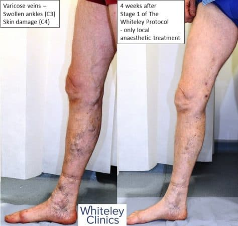 Large varicose veins swollen ankles and haemosiderin skin damage cured by The Whiteley Protocol local anaesthetic endovenous surgery - medial leg