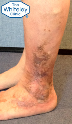 Lateral venous leg ulcer outside of ankle cured by The Whiteley Protocol - CEAP-C5