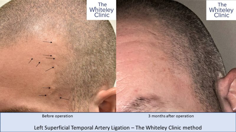 Left Superficial Temporal Artery Ligation using Whiteley Clinic technique
