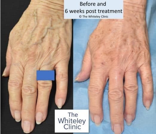 Left hand vein removal at The Whiteley Clinic – Before and after – Mark Whiteley