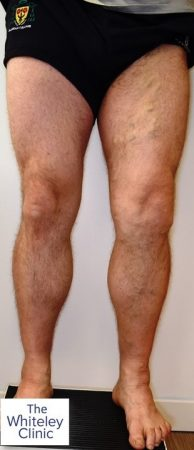 Left leg recurrent varicose veins – Pre-op picture of Richard Sutton – 1st microwave varicose veins treatment in UK – EMWA