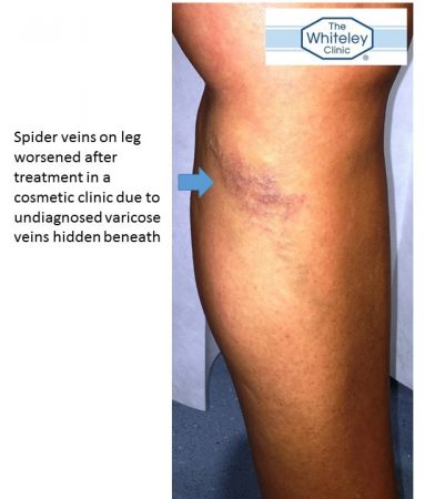 Leg spider veins worse after treatment due to hidden varicose veins