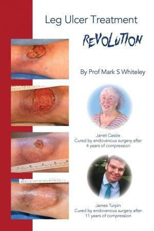 Leg Ulcer Treatment Revolution - by Prof Mark S Whiteley