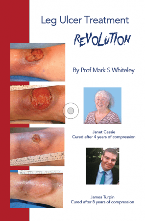 Leg Ulcer Treatment Revolution - by Prof Mark Whiteley