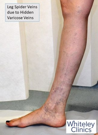Leg spider veins due to hidden varicose veins - found by Whiteley Protocol