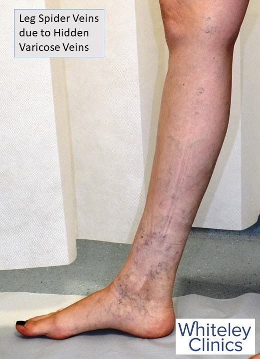 Leg spider veins from hidden varicose veins