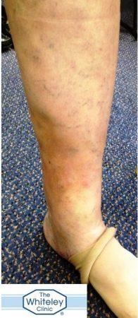 Lipodermatosclerosis LDS secondary to varicose veins CEAP C4 skin damage