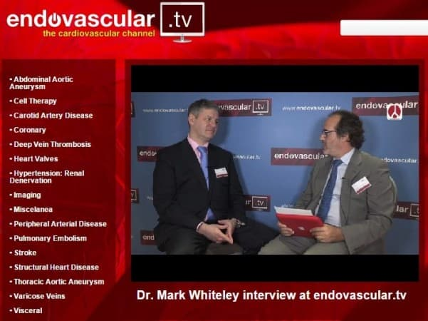 Mark Whiteley interviewed about new treatments for varicose veins on Endovascular TV in October 2014