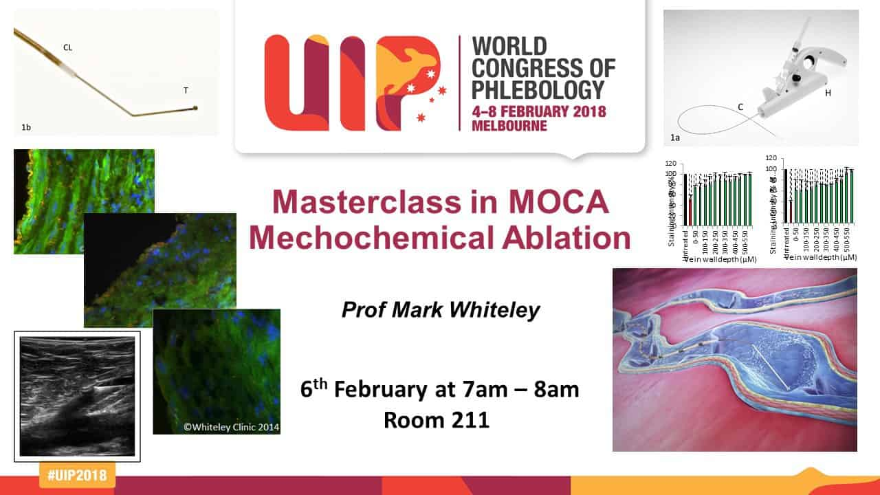 Masterclass on MOCA - Clarivein - with Prof Mark Whiteley - 6th Feb 2018