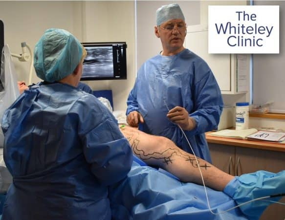 Microwave varicose veins treatment – First case in UK performed by Prof Mark Whiteley and Judy Holdstock in February 2019 – EMWA