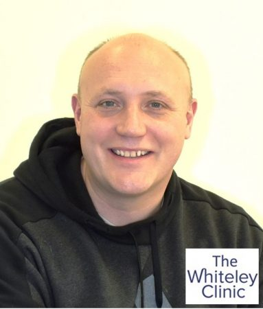 Mr Richard Sutton – First case of endovenous microwave varicose veins treatment in UK – 15 Feb 2019 – The Whiteley Clinic