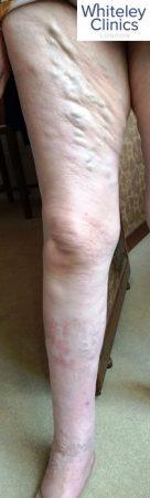 varicose veins, veins, vein health, bulging veins, aching legs