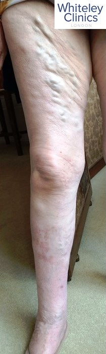 No varicose veins are too big for laser treatment